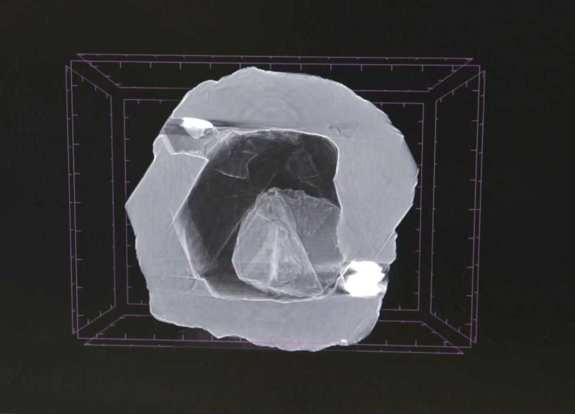 X-ray-view